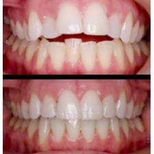 Activateur dentaire  DENT-CARE
