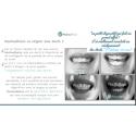 Activateur dentaire français